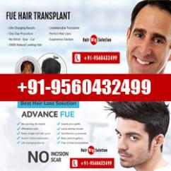 Wigs in Delhi, Hair Wigs in Delhi, Hair Loss/ Fall Solution in Delhi