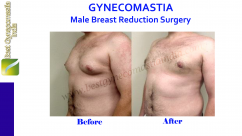 What is Male Breast Reduction Surgery Cost in Delhi