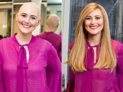 Wigs for cancer patients in Delhi