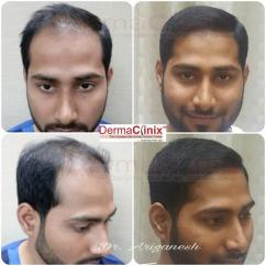 Hair Transplant Centre in Chennai