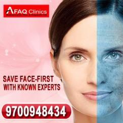 Best skin treatment with affordable cost and guaranteed result