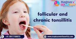 Follicular and chronic tonsillitis treatment in Hyderabad