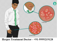 Top Herpes treatment doctor in Delhi NCR