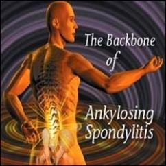Complete and Permanent Cure Of Ankylosing spondylitis