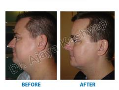 Achieve a firmer appearance through liposuction