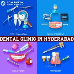 Dental Clinic in Hyderabad