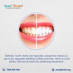 Dental Treatment In Installments -AreaDental Hospital In hyderabad